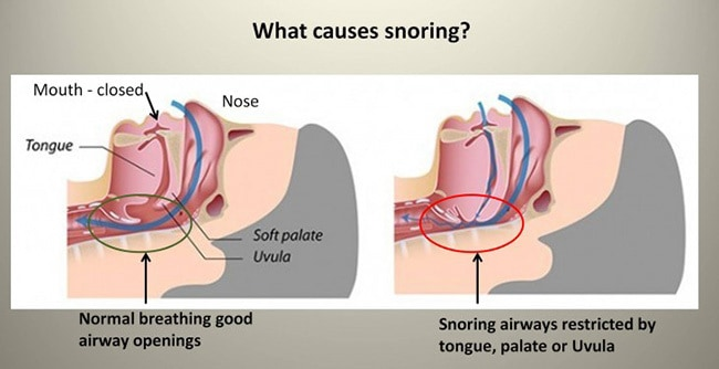diagram showing the main causes of snoring