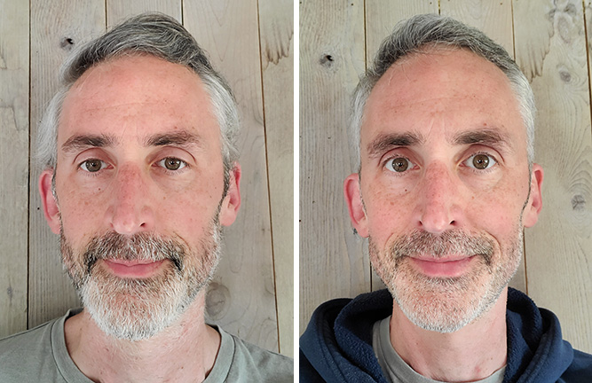 photos showing the author ethan green's face before and after giving up sugar and alcohol, taken one month apart.